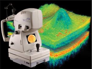 De Jongh Optometry - OCT