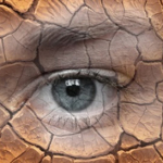 De Jongh Optometry - Dry eye syndrome