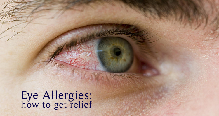 De Jongh Optometry Eye allergies