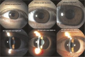 De Jongh Optometry - Slit Lamp Exam